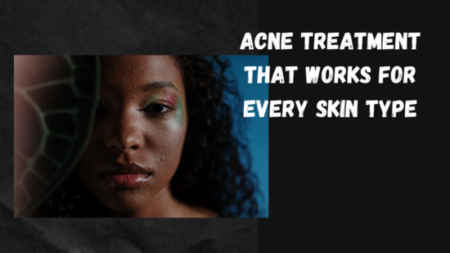 acne treatment that works for every skin type
